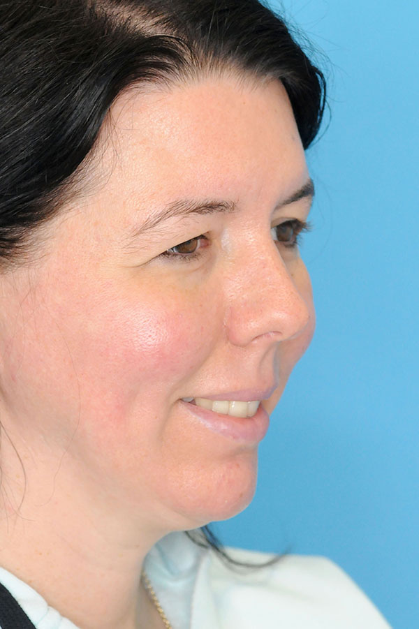 non surgical chin augmentation before